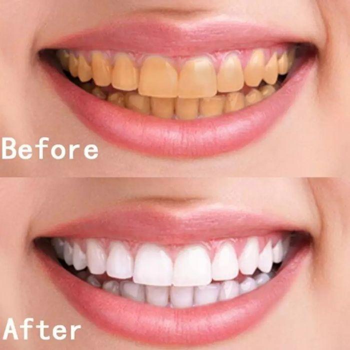 Azdent para branqueamento dentário, eliminar tártaro nos dentes ,compo