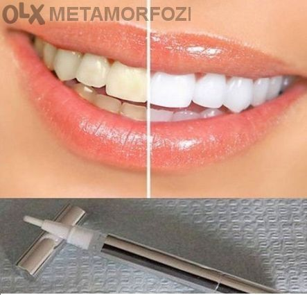Писалка за избелване на зъби