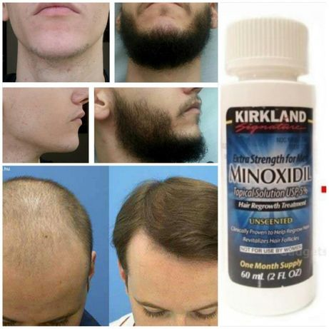 MINOXIDIL Для роста волос и бороды
