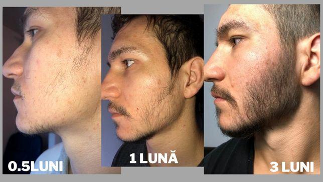 Minoxidil Kirkland 5%, 3 luni aplicare, Tratament Barba si Alopecie