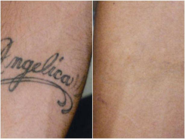 Лазерное удаление перманентного макияжа  а так же тату