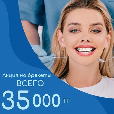 Брекеты 35000 тг стоматология стоматолог лечение зубов Аксай 4