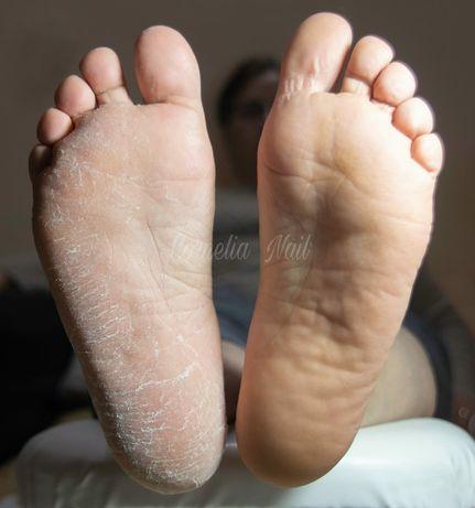Curățarea tălpilor si manichiură