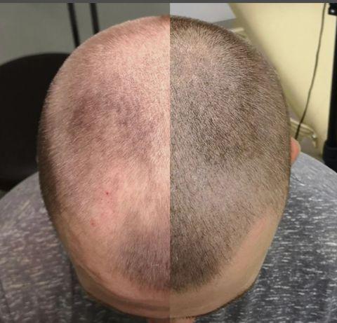 Татуаж волос - Трихопигментация