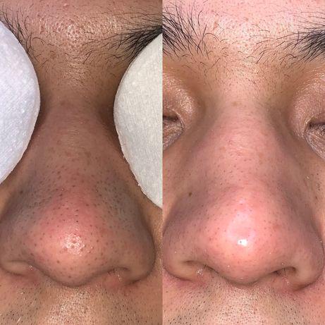 Чистка лица от косметолога с медицинским образованием