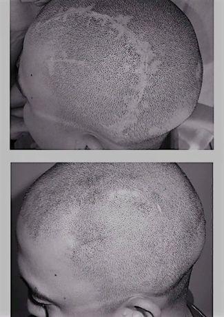 Перманентный татуаж, лазерное удаление, карбoновый пилинг, BrowBar