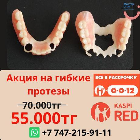 Гибкие протезы Зубной техник Ремонт протеза Стоматолог Импланты Виниры
