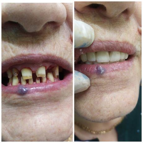 АКЦИЯ скидка 80%. В стоматологии