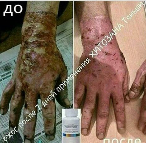 Обследование и лечение всех кожных заболеваний.