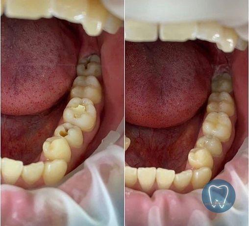 Стоматологические услуги по доступным ценам. Удаление от 3 тыс