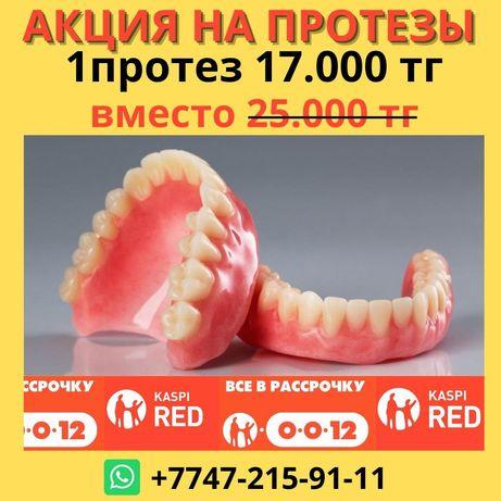 Протезы Зубной техник Ремонт протеза Виниры Импланты Стоматолог Алматы