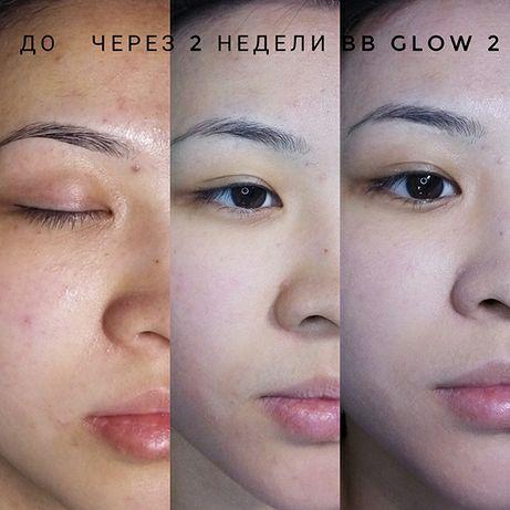 BB Glow биби эффект тоналки на год в подарок лёгкая чистка лица