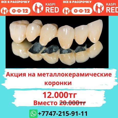 Металлокерамика Стоматолог Алматы Виниры Импланты Протез Зубной техник