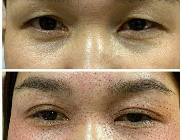 Plasma lift подтяжка лица,блефаро Удаление шрамов