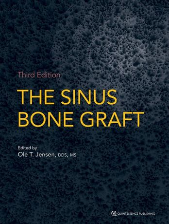 The Sinus Bone Graft - Ole T. Jensen 3rd Edition - 2019