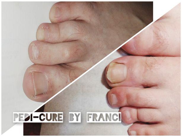 Pedichiura medicala și manichiura(acreditat)