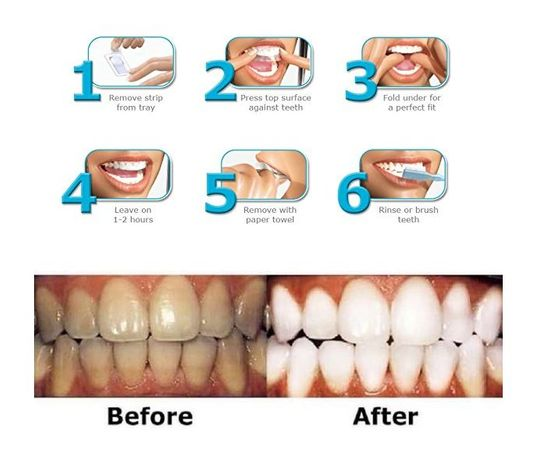 Ефикасните ленти Advanced Teeth Whitening за избелване на зъбите