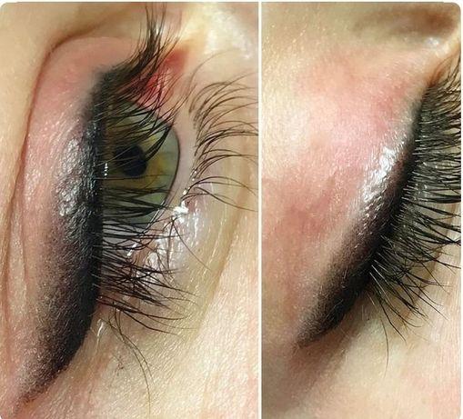 Карбоновый пилинг/ удаление тату / перманентный макияж