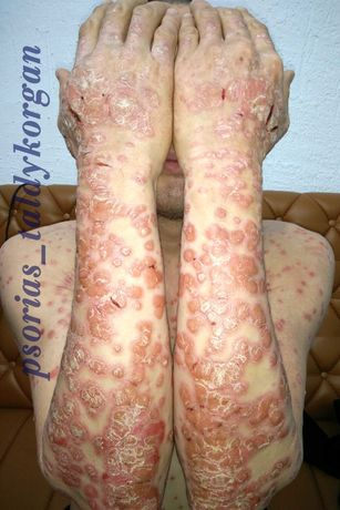 Лечение псориаза всех форм, гиперкератоза, а/дерматита, нейродермита,