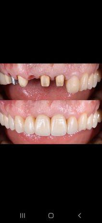 Стоматология, Тіс дәрігері, Лечение зубов, Удаление, Отбеливание зуб