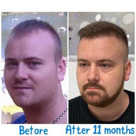 Implant de păr numai în 2 zile