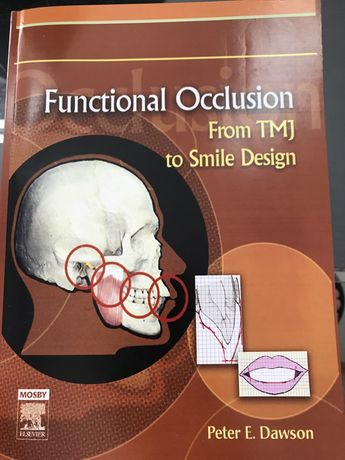 Functional Occlusion from TMJ to Smile Design-Peter E. Dawson