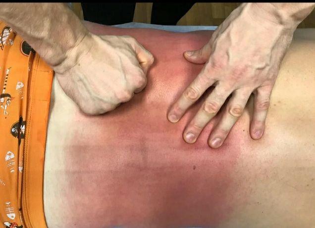 Миофасциальный массаж триггерных точек Миопрессура