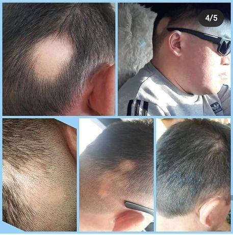 Витами для роста волос и ногтей, восстановление