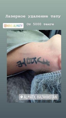 Лазерное удаление татуировок, татуажа по акции 4000 тенге
