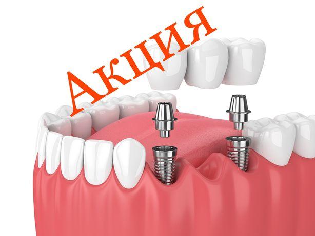 Имплантация зубов 39990тенге