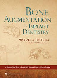 Bone Augmentation in Implant Dentistry - Pikos Michael A. 2019
