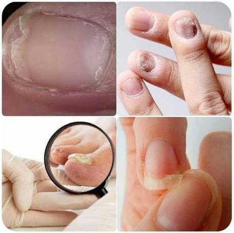 Ciupercă unghie, unghii subțiri, infecții unghii