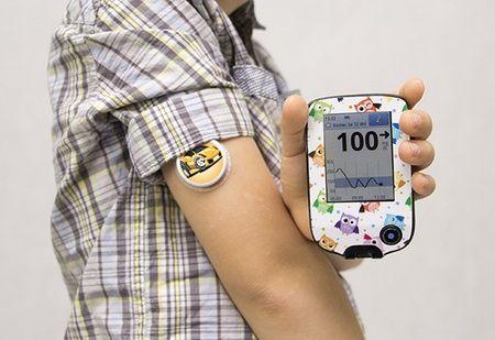 Senzori de monitorizare a glicemiei Freestyle Libre- Diabet Control