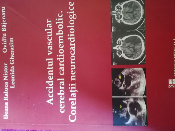 Accidentul vascular cerebral cardioembolic. Corelații neurocardiologic