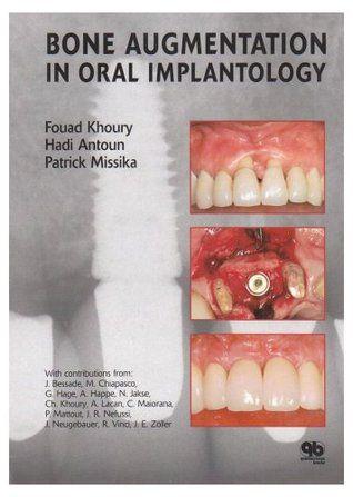 Bone Augmentation in Oral Implantology - Fouad Khoury