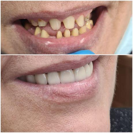 Стоматолог, лечение пигментации, элос