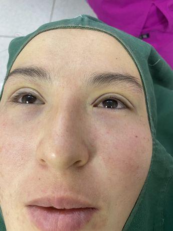 Нитевая блефоропластика и увелечение губ
