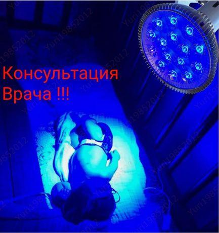 Фотолампа, лампа , желтуха, желтушка лечения